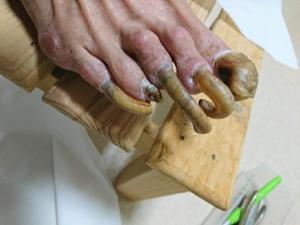 フットケア肥厚した爪
