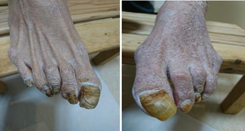 肥厚した爪のケア