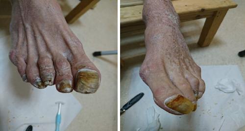 フットケア後の足