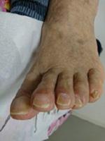 左足拇趾の巻き爪