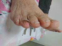 剥がれかけている爪